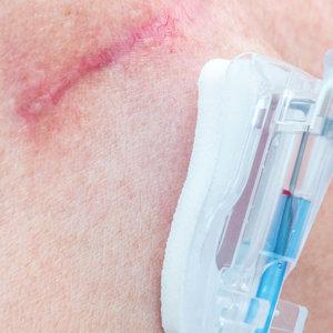 Chemo Port Scar