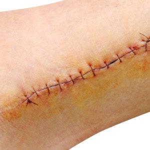 Laceration/Cut/Stitches
